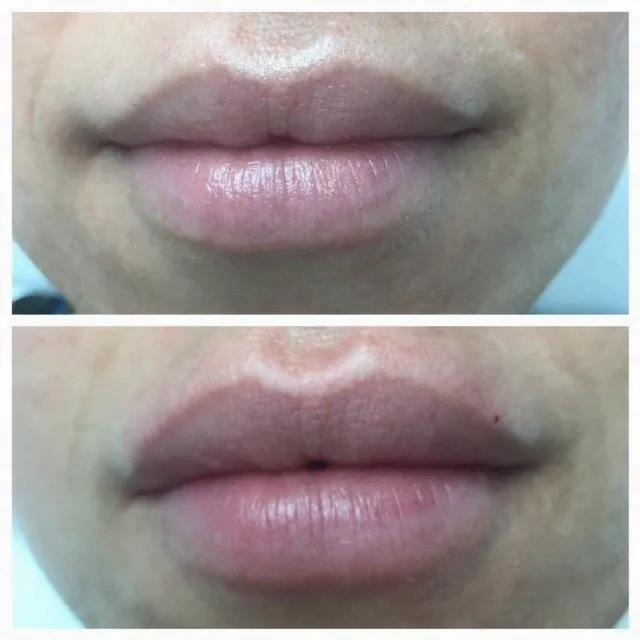 picture of lips