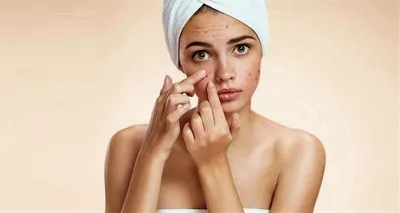 Acne and other common skin problems