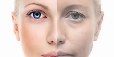 Eyebrow Surgical lift