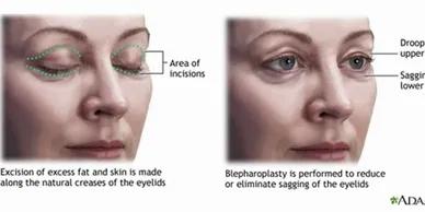 Eyelid Surgery (Blepharoplasty)