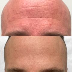 picture of a forehead