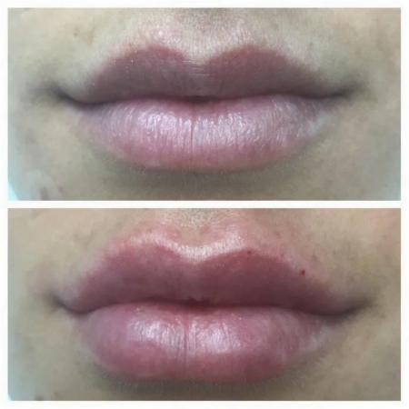 closeup picture of lips