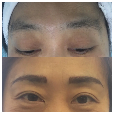 picture of eyebrows