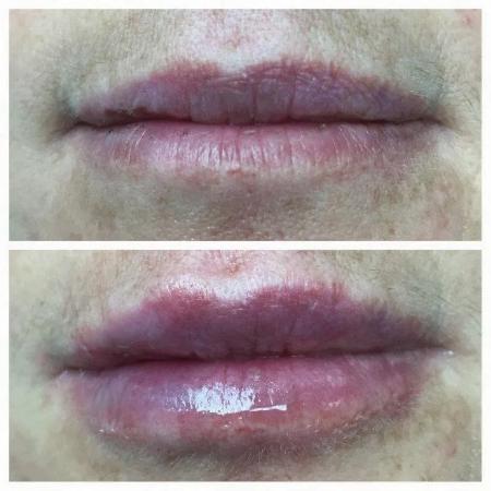 photo of lips