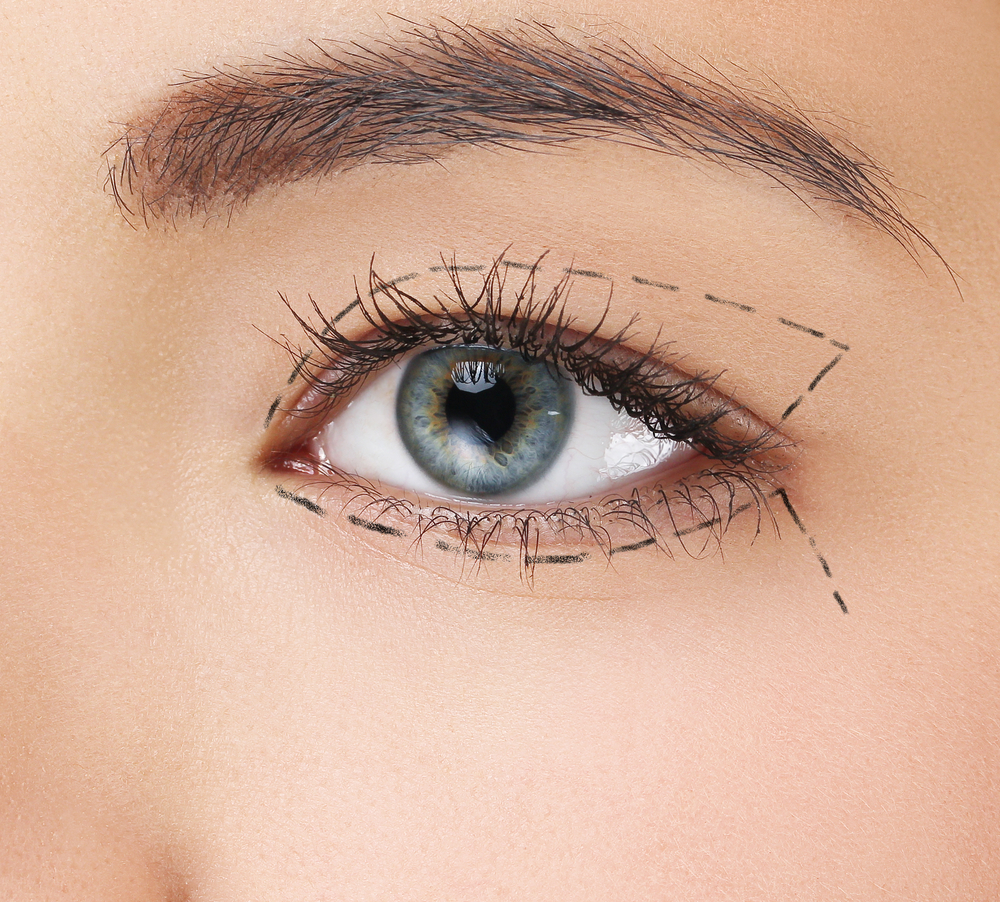 Newport Beach Eyelid Surgery