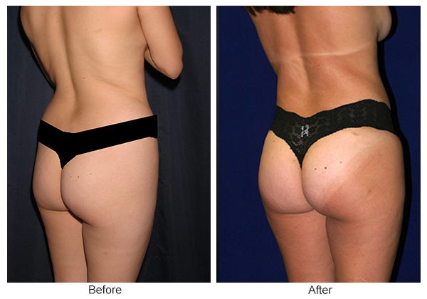 Before & After Buttock Augmentation 3 – LQ
