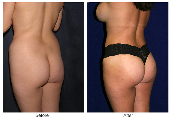 Before & After Buttock Augmentation 3 – RQ