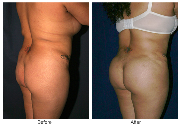 Before & After Buttock Augmentation 5 – LQ