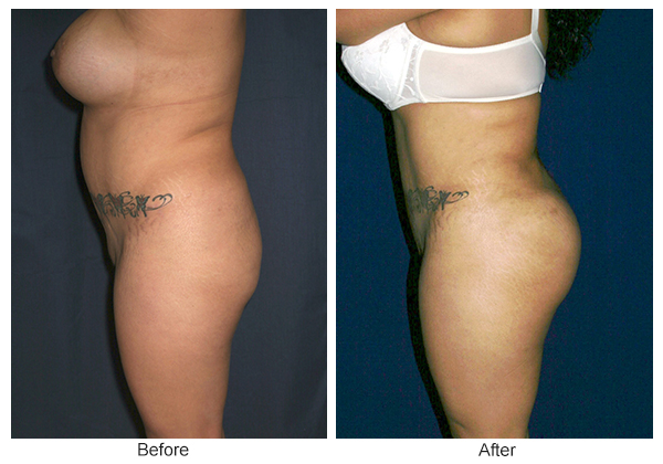 Before & After Buttock Augmentation 5 – R