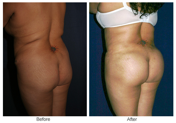 Before & After Buttock Augmentation 5 – RQ