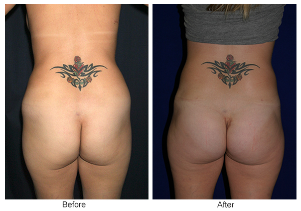 Before & After Buttock Augmentation 8 – F