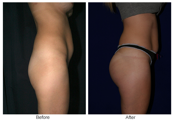Before & After Buttock Augmentation 8 – L