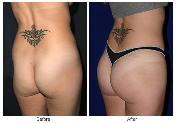 Before & After Buttock Augmentation 8 – LQ