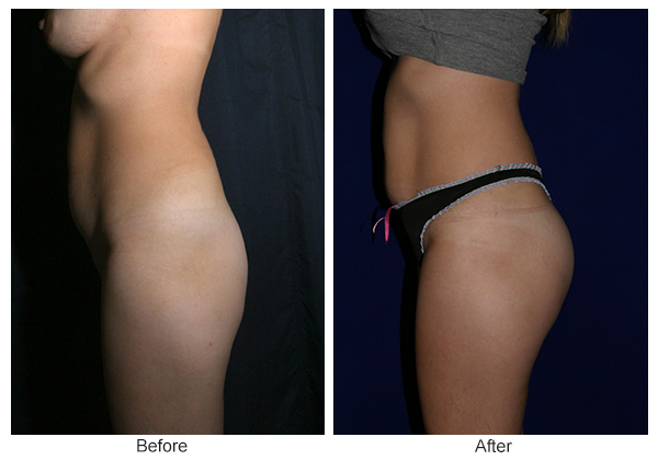 Before & After Buttock Augmentation 8 – R