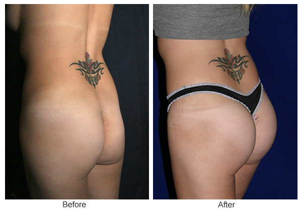Before & After Buttock Augmentation 8 – RQ