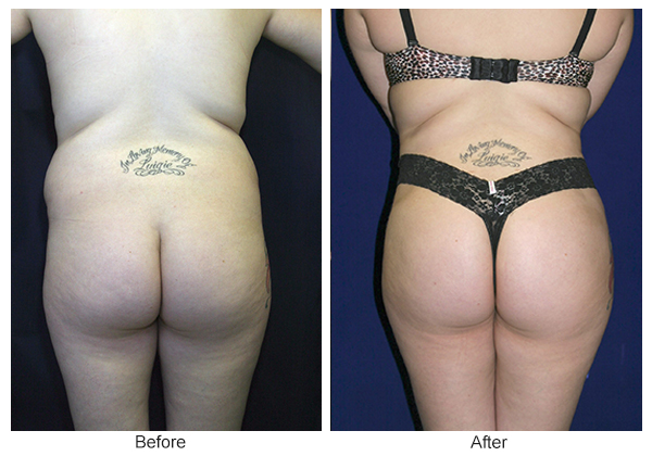 Before & After Buttock Augmentation 9 – F