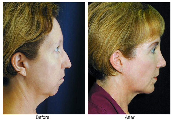 Before & After Chin Implant 2