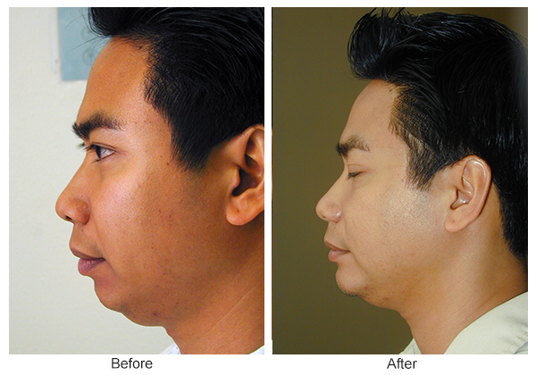 Before & After Chin Implant 3