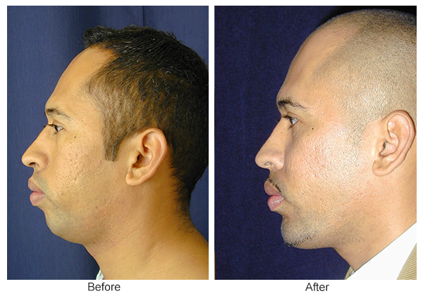 Before & After Chin Implant 4
