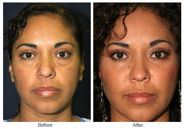 Before & After Eyelid Surgery 2