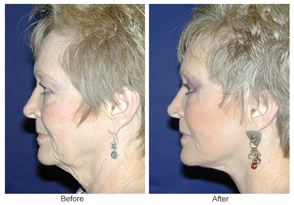 Before & After Facelift 1 – L
