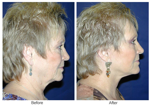 Before & After Facelift 1 – R