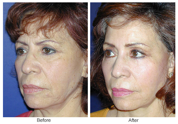 Before & After Facelift 3 – LQ