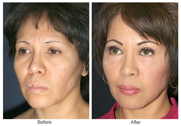 Before & After Facelift 8 – LQ