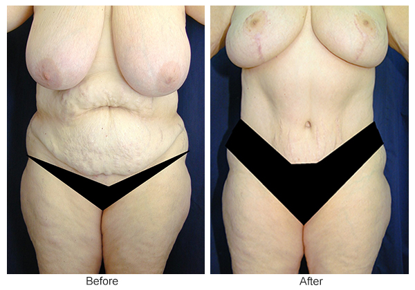 Before & After Tummy Tuck 10  – F