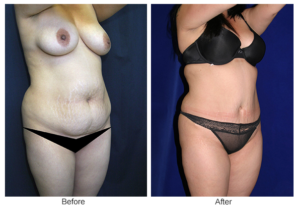 Before & After Tummy Tuck 11  – RQ