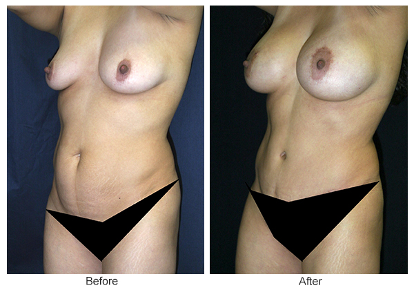 Before & After Tummy Tuck 2 – LQ