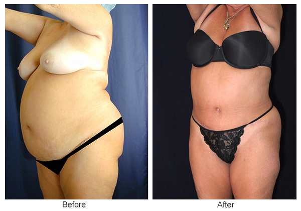 Before & After Tummy Tuck 3 – LQ