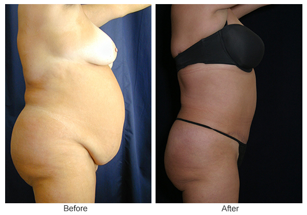 Before & After Tummy Tuck 3 – R