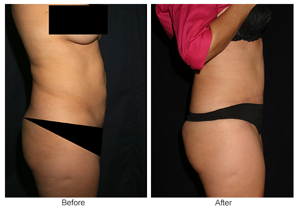 Before & After Tummy Tuck 4  – R