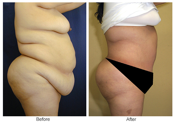 Before & After Tummy Tuck 5  – R