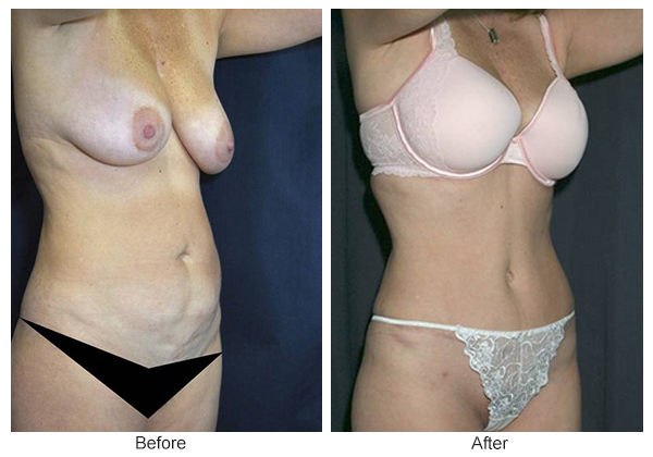 Before & After Tummy Tuck 6  – RQ