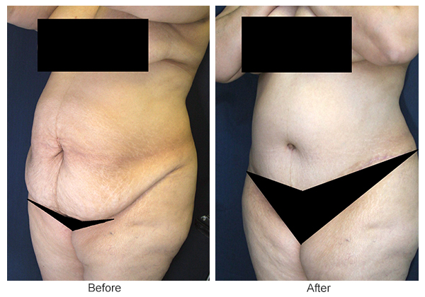 Before & After Tummy Tuck 7  – LQ