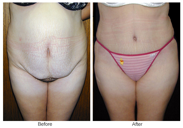Before & After Tummy Tuck 9  – F