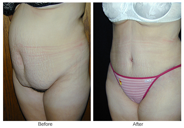 Before & After Tummy Tuck 9  – LQ