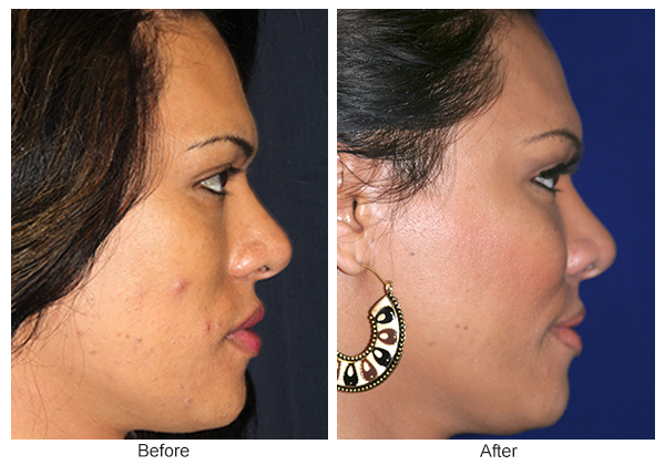 Before and After Cheek Implant 1 – R