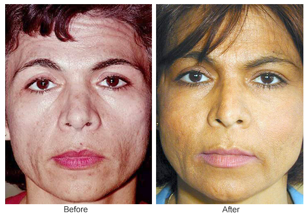 Before and After Cheek Implant 4 – F