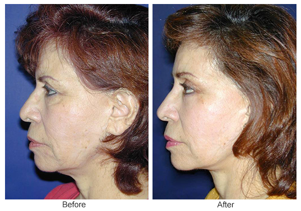 Before and After Forehead Lift 2 – L