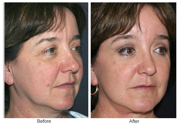 Before and After Forehead Lift 3 – RQ