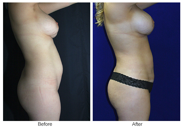 Before and After Liposuction 1 – R