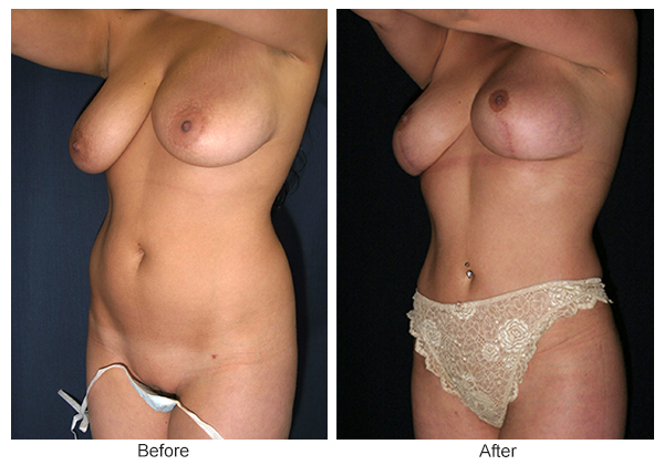 Before and After Liposuction 2 – LQ