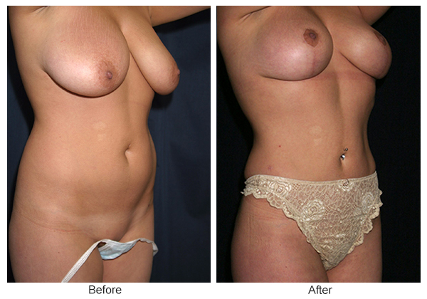 Before and After Liposuction 2 – RQ