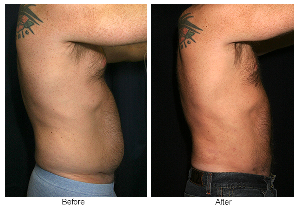Before and After Liposuction 3 – R
