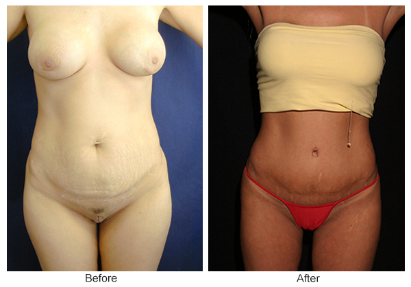 Before and After Liposuction 5 – F