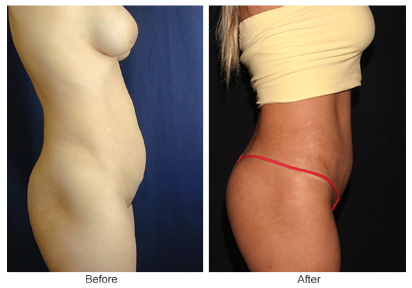 Before and After Liposuction 5 – R