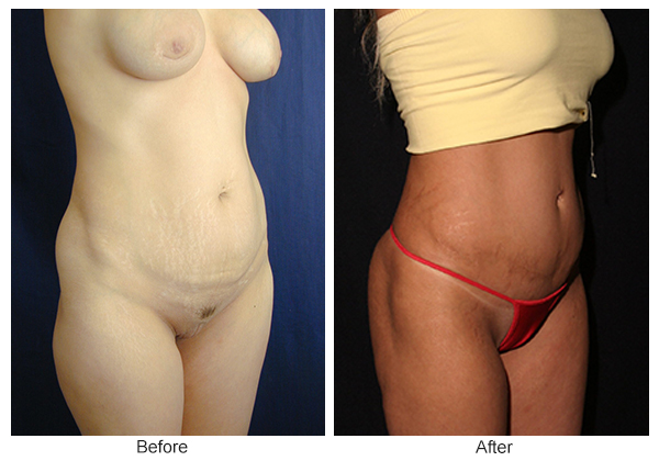 Before and After Liposuction 5 – RQ